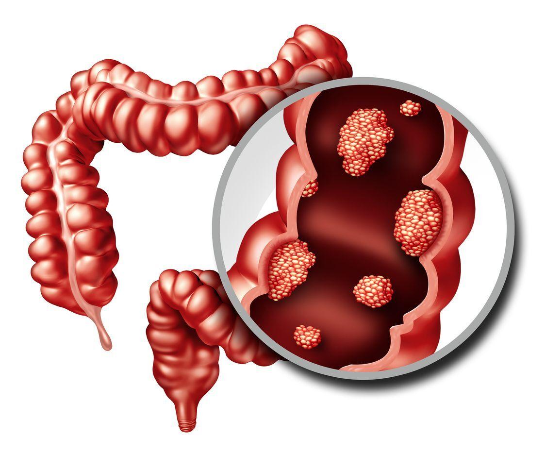 ilustração mostra lesão no intestino