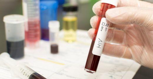 Homem é curado do vírus HIV após procedimento arriscado