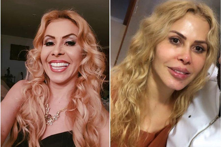 joelma antes e depois