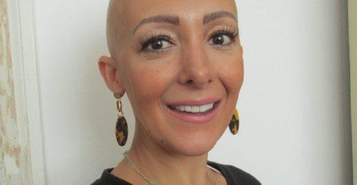 Mãe perde perde todo o cabelo após dar à luz seu segundo filho