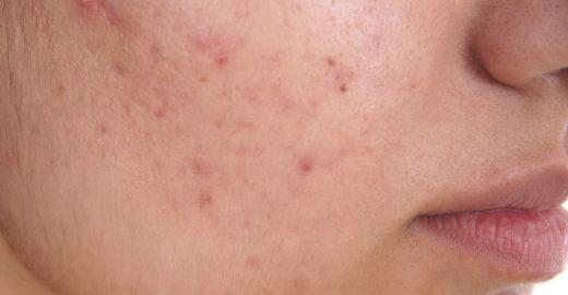 Pesquisadores descobrem a causa da acne adulta