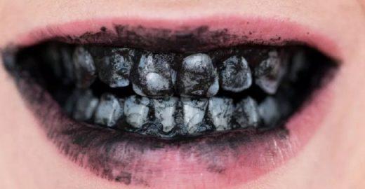 Clareamento com carvão ativado pode desgastar os dentes