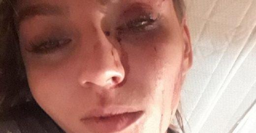 Traída, jovem pede fim do relacionamento e é agredida em Caxias