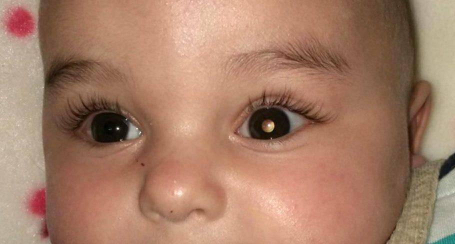 bebê com mancha branca no olho