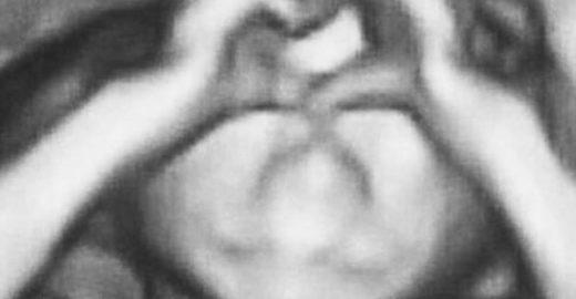 Bebê faz gesto de 'coração' em ultrassom