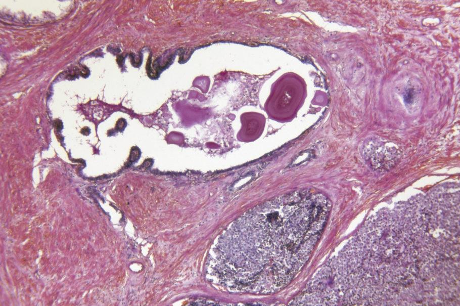 ilustração de uma próstata