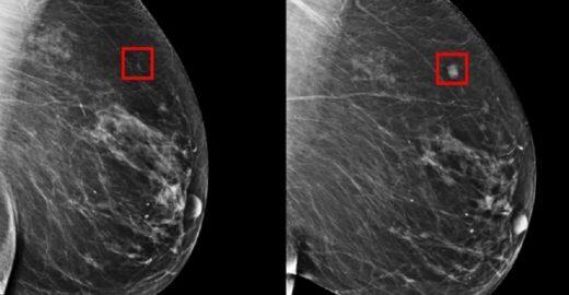 Ferramenta do MIT prevê câncer de mama com 5 anos de antecedência