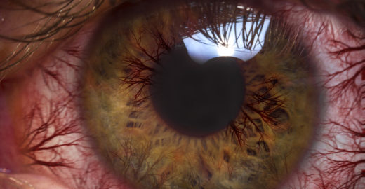 Doença causada por lente de contato leva mulher a retirar o olho