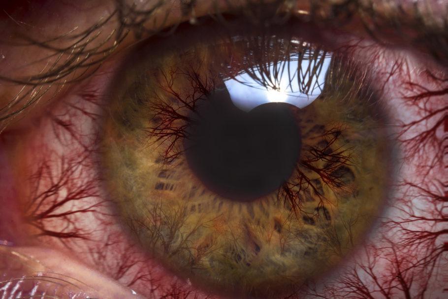olho com vasos vemerlhos