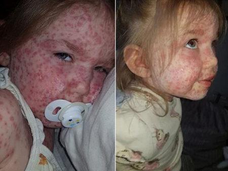 criança com manchas no rosto