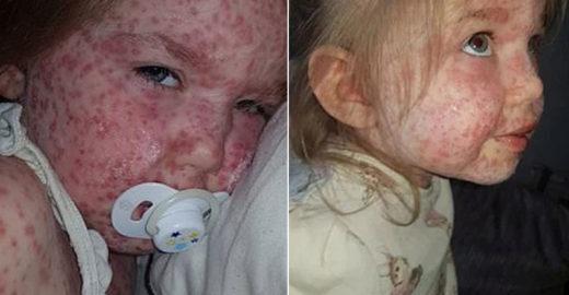 Mãe faz alerta após a filha ficar com a pele coberta de manchas