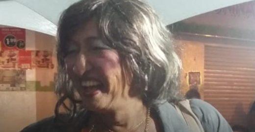 Travesti idosa é morta a pauladas e tem corpo incendiado