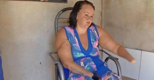 Homem é condenado a 15 anos de prisão por decepar as mãos de mulher