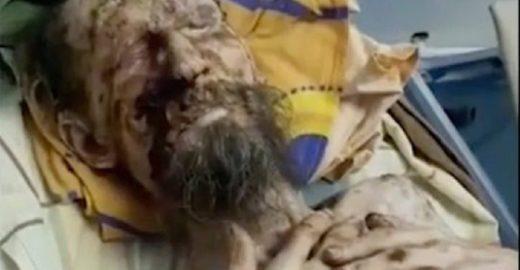 'Homem atacado por urso', na verdade, sofre de psoríase