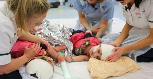 Gêmeas siamesas são separadas após mais 50 horas de cirurgia