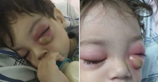 Mãe faz alerta para condição grave decorrente de sinusite