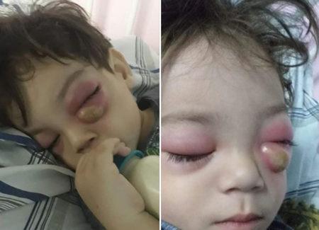 criança com um caroço abaixo do olho