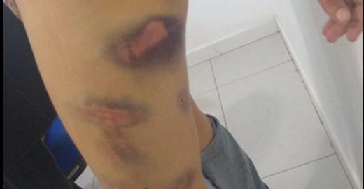 Jovem é preso por torturar e fazer a ex comer fezes de animais