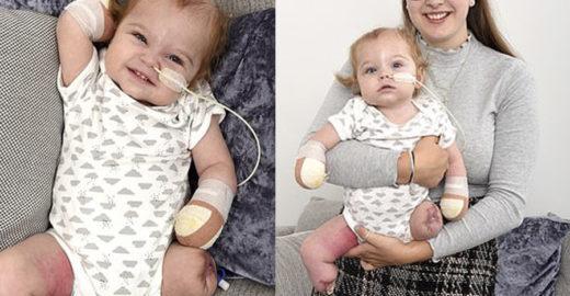 Bebê perde membros após infecção grave que começou na garganta
