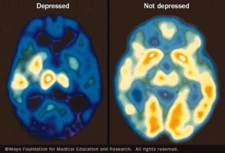 duas imagens: uma mostra um cérebro com poucos sinais luminosos e a outra com muitas áreas claras