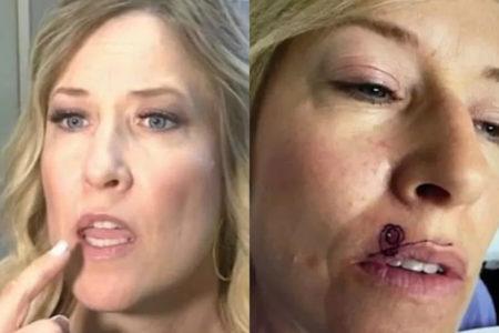 mulher com uma lesão perto da boca