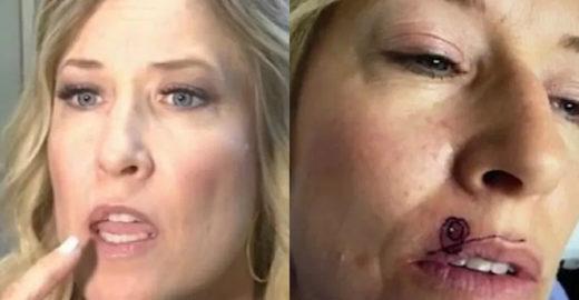 Mulher descobre que espinha acima do lábio era um câncer