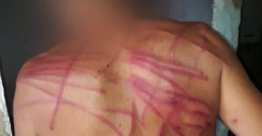 Morador do Rio diz que PMs agrediram irmão com esquizofrenia