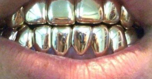 Com R$ 157 mil, Marco Feliciano teria todos seus dentes de ouro