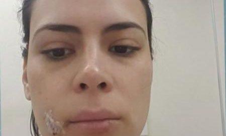 Jornalista da Globo é mordida no rosto por sua cadela e leva 20 pontos