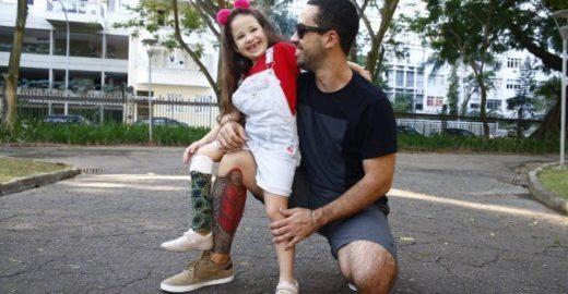 Pai tatua prótese na perna para ficar 'igual' a filha