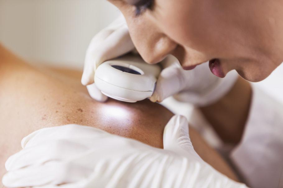 dermatologista examinando paciente com Câncer de pele
