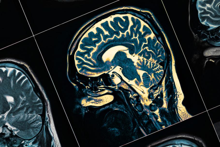 exame mostra a imagem de um cérebro