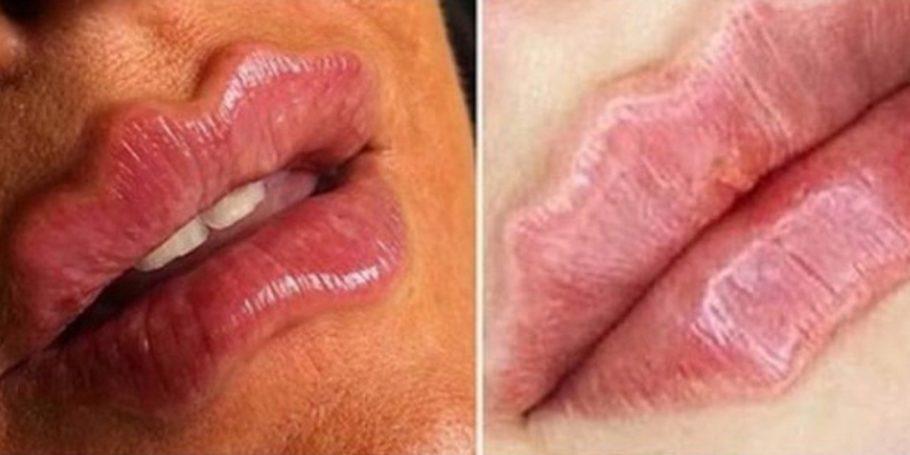 fotos de mulheres com os lábios ondulados