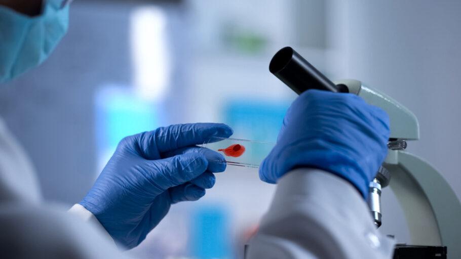 amostra de sangue em laboratório