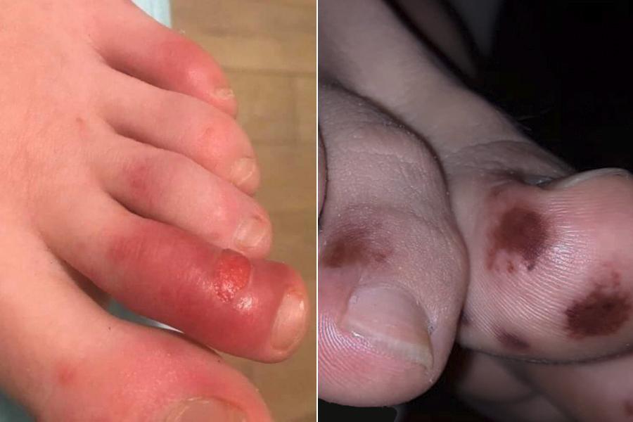 lesões nos dedos