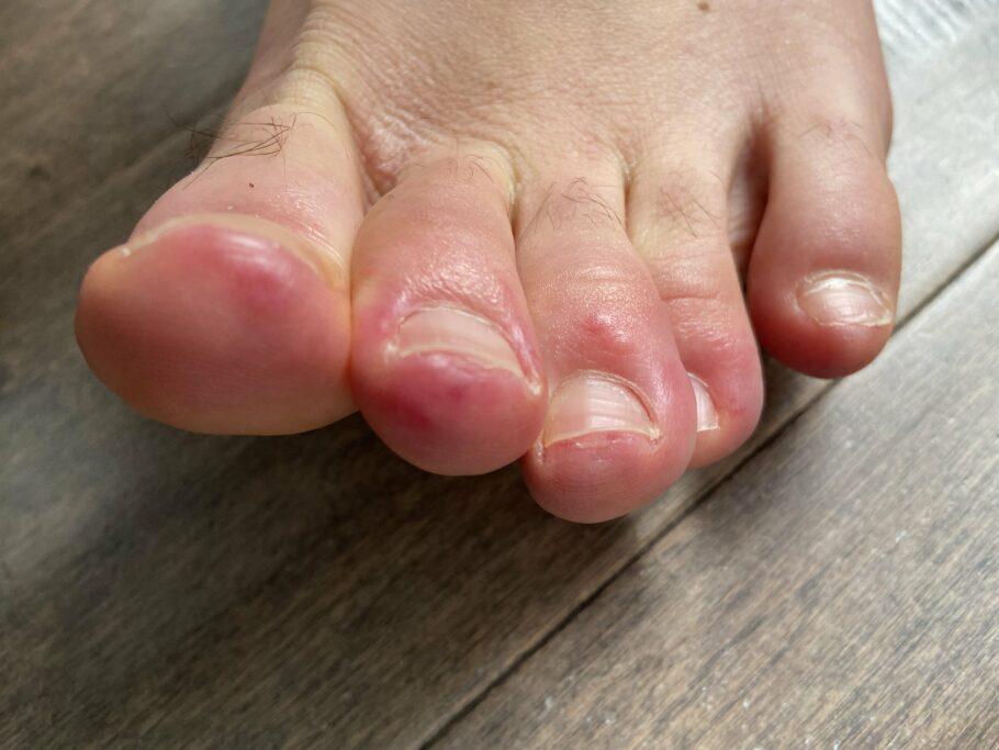 lesões nos dedos dos pés
