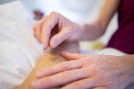 Acupuntura, ramo milenar da medicina chinesa, utiliza agulhas em pontos específicos do organismo do paciente