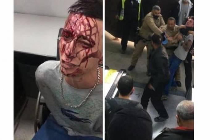 Vídeos mostram jovem com a cabeça sangrando em uma sala e levando 'gravata' de segurança da CPTM