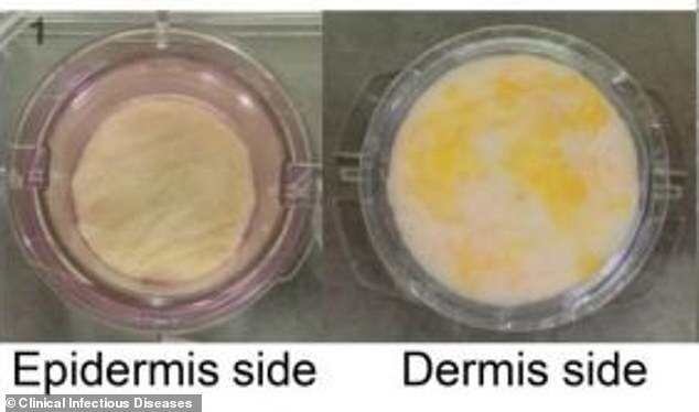 coronavírus na pele