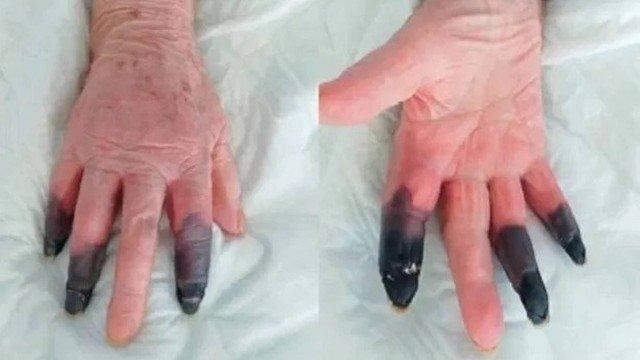 dedos pretos
