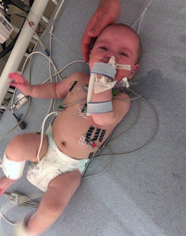 bebê sindrome rara