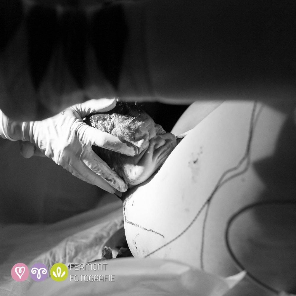 As fotos registram o o exato instante em que surge a cabecinha do bebê – a chamada coroação.