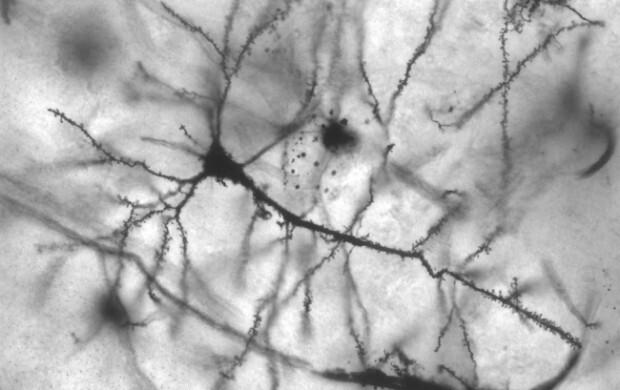 Experimentos com animais indicam que cortar 40% das calorias protege neurônios de danos causados pelo excesso de cálcio associado a doenças como Alzheimer, além de aumentar a resiliência das células ao estresse oxidativo