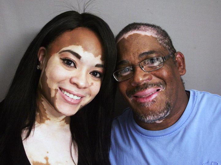 Vitiligo,Vitiligo Treatment - Anti Vitiligo Oil