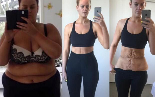 Como perder o peso por meio de um banho e mel